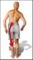 Douleur radiculaire caractéristique dans le membre inférieur