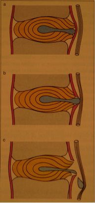 Hernie discale en plan sagittal