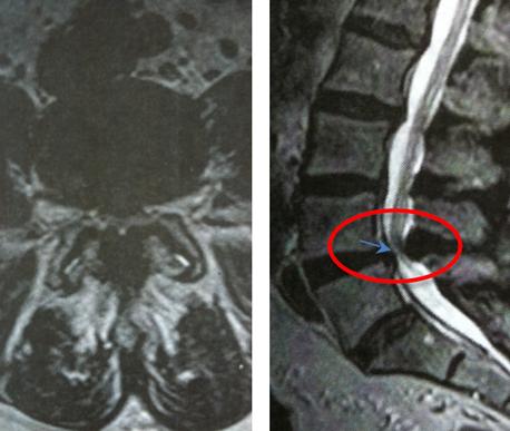IRM lombaire en coupe axiale
