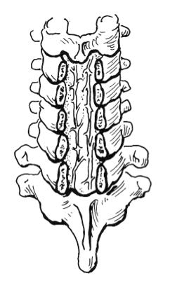 Laminectomie des vertèbres C3 à C7