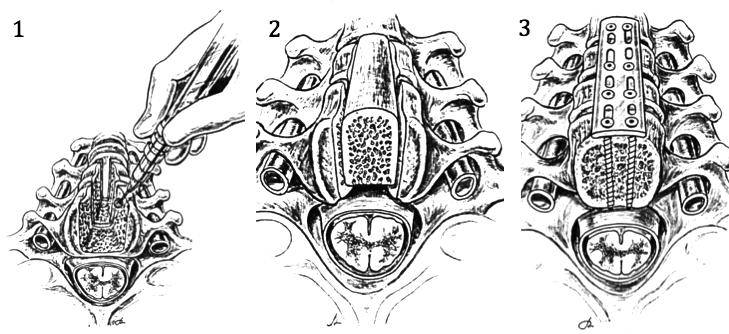 Somatotomie médiane cervicale